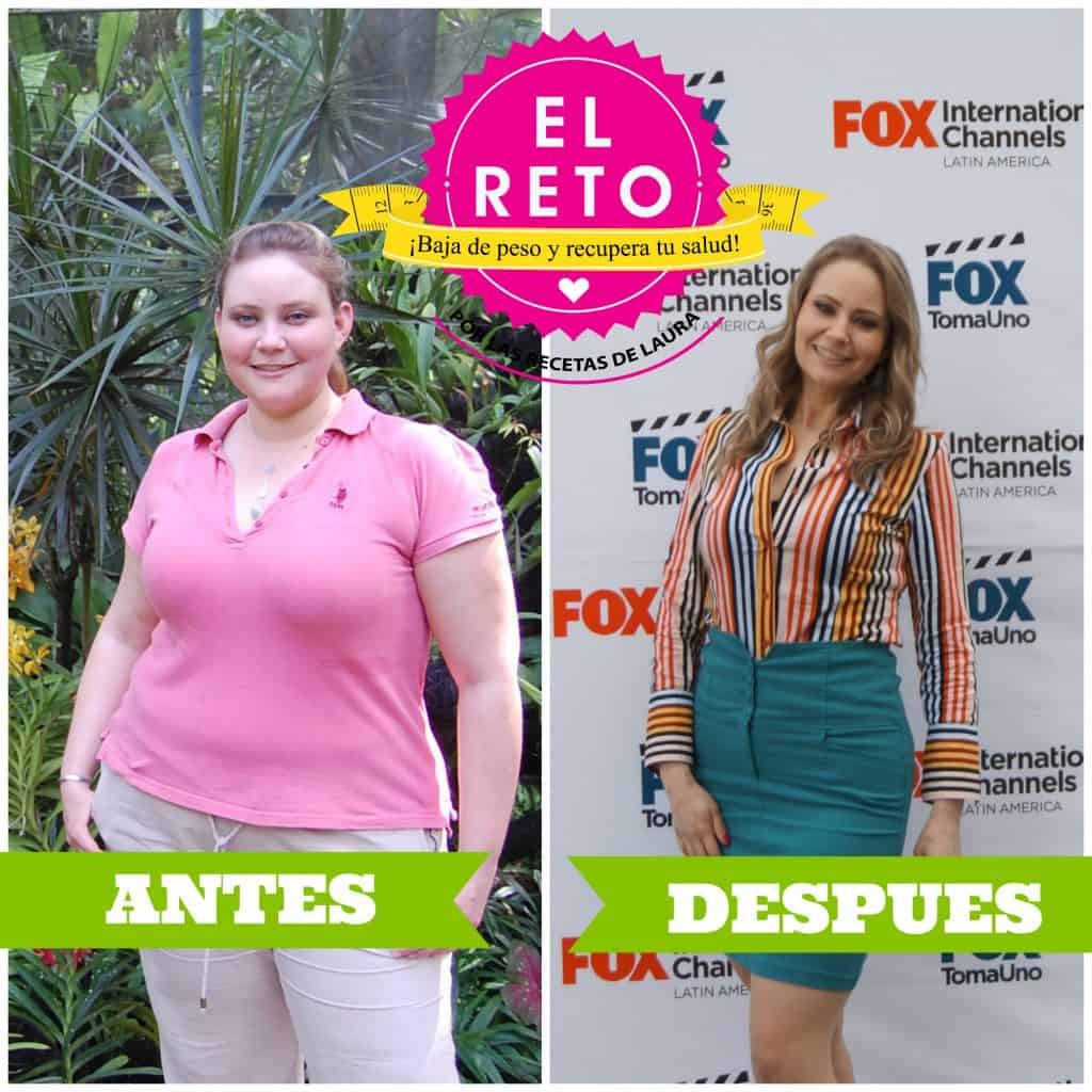 ANTES Y DESPUES DE LAURA